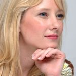 Anne Heche plastic surgery (13)