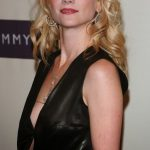 Anne Heche plastic surgery (15)
