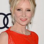 Anne Heche plastic surgery (20)