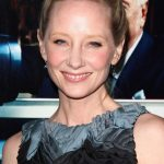 Anne Heche plastic surgery (21)