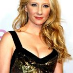 Anne Heche plastic surgery (26)