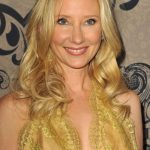 Anne Heche plastic surgery (28)