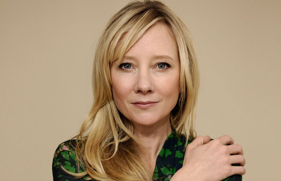 Anne Heche plastic surgery