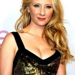 Anne Heche plastic surgery (34)