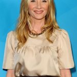 Anne Heche plastic surgery (9)