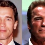 Arnold Schwarzenegger before and after plastic surgery (17)