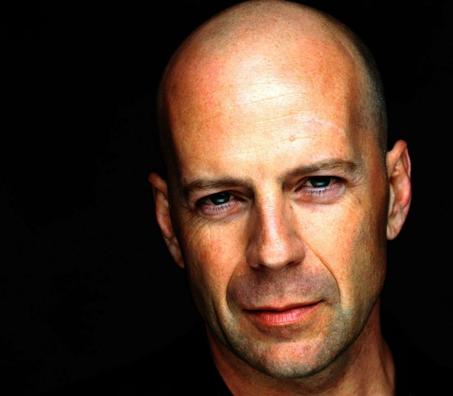 Bruce Willis plastic surgery (1)