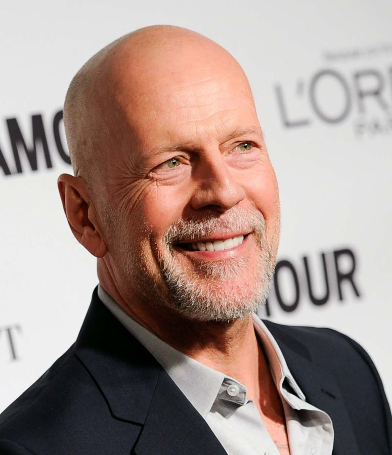 Bruce Willis plastic surgery (3)