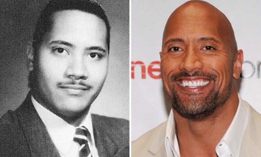 Dwayne Johnson before and after plastic surgery