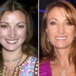 Jane Seymour before and after plastic surgery (1)