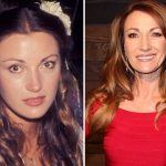 Jane Seymour before and after plastic surgery (2)