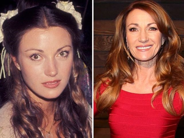 Jane Seymour Before And After Plastic Surgery 2