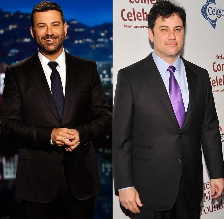 Jimmy Kimmel before and after plastic surgery