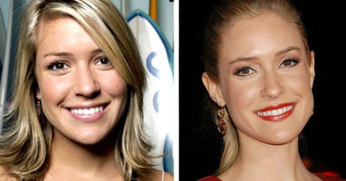 Kristin Cavallari before and after plastic surgery