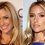 Kristin Cavallari before and after plastic surgery (16)
