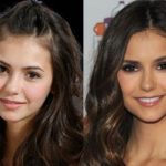 Nina Dobrev before and after plastic surgery (21)
