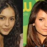 Nina Dobrev before and after plastic surgery (26)
