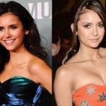 Nina Dobrev before and after plastic surgery (28)