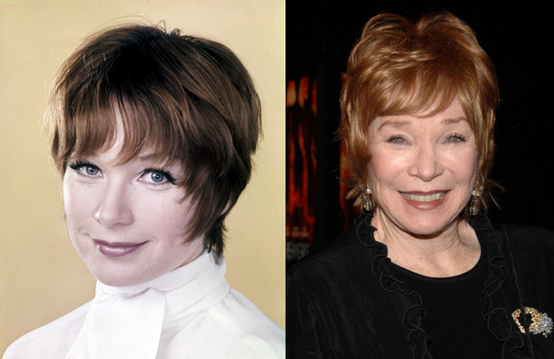 Shirley MacLaine before and after plastic surgery