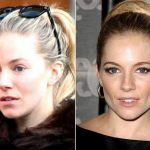 Sienna Miller before and after plastic surgery (26)