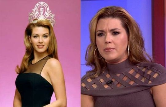 Alicia Machado before and after plastic surgery