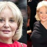 Barbara Walters before and after plastic surgery (9)