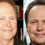 Billy Crystal before and after plastic surgery (2)