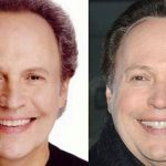 Billy Crystal before and after plastic surgery (29)