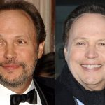 Billy Crystal before and after plastic surgery (30)