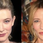 Cate Blanchett before and after plastic surgery (01)