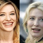 Cate Blanchett before and after plastic surgery (26)