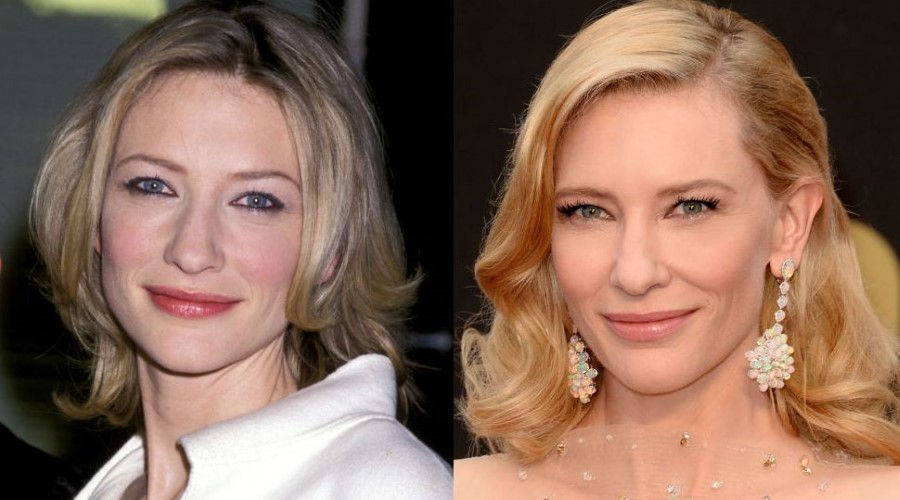 Cate Blanchett before and after plastic surgery