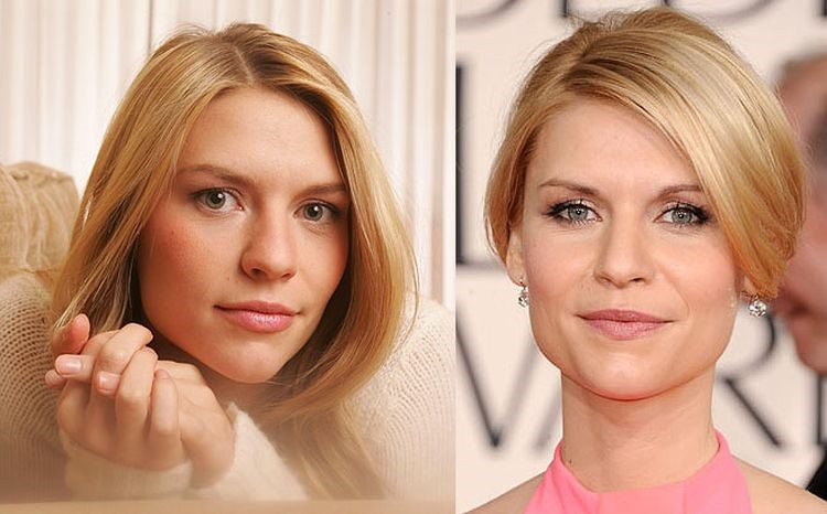 Claire Danes before and after plastic surgery
