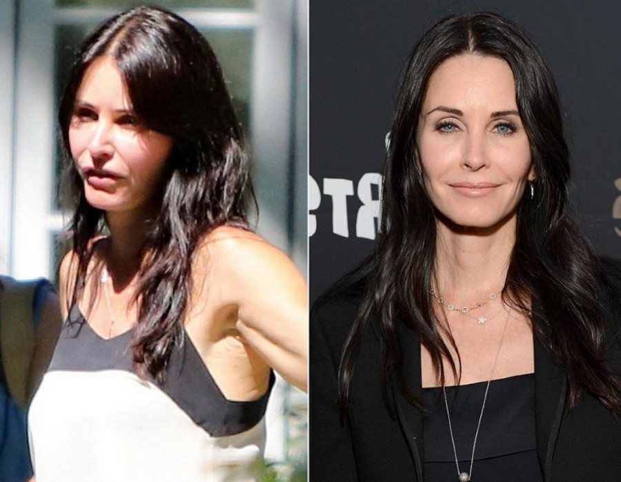 Courteney Cox Before And After Plastic Surgery 17