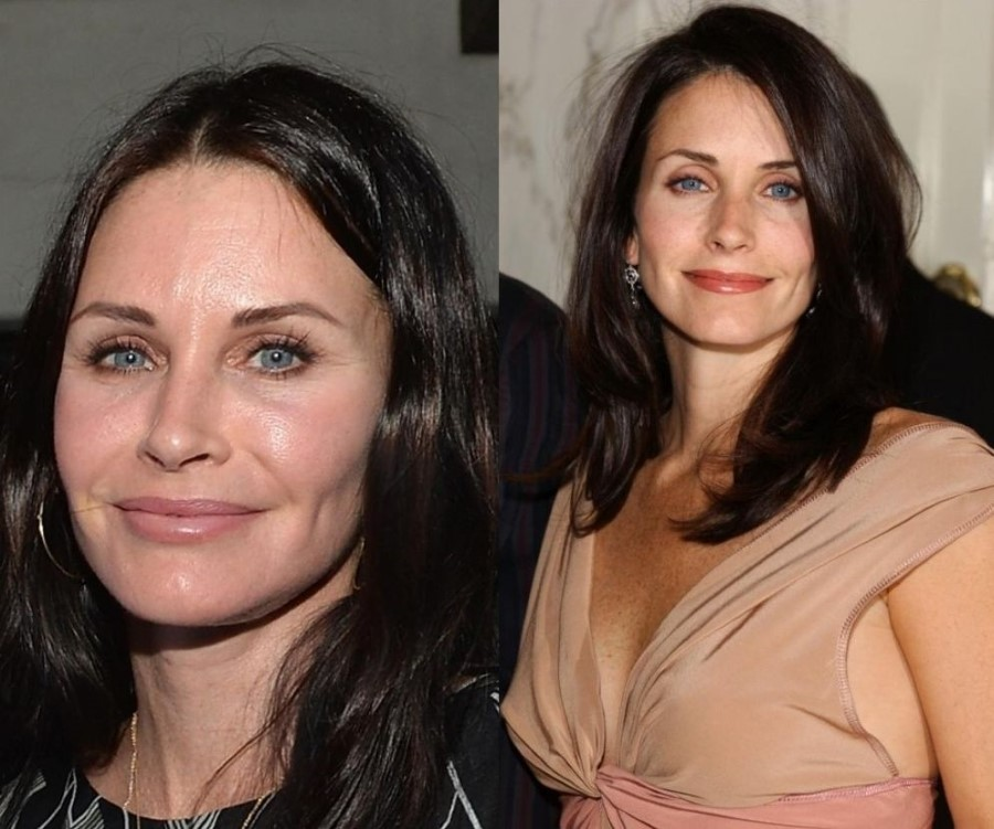 Courteney Cox Before And After Plastic Surgery 24