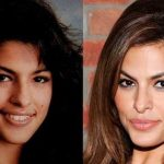 Eva Mendes before and after plastic surgery (11)
