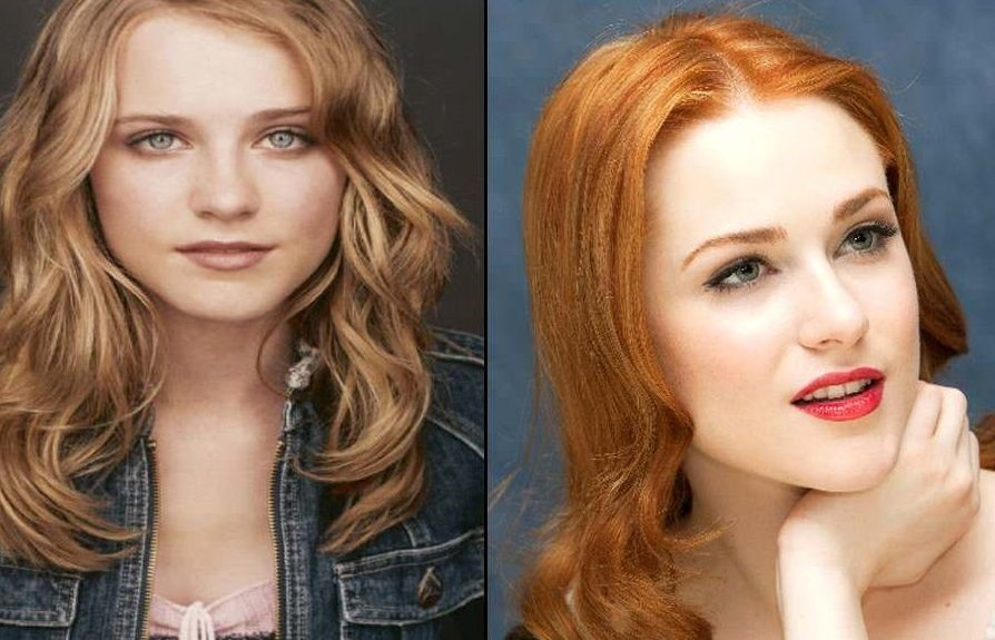 Evan Rachel Wood before and after plastic surgery