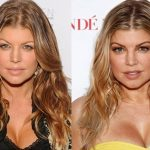 Fergie before and after plastic surgery (20)