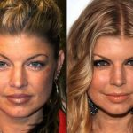 Fergie before and after plastic surgery (22)