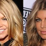 Fergie before and after plastic surgery (6)