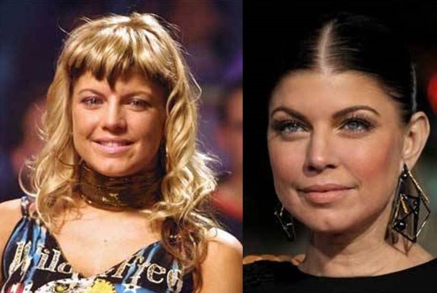 Fergie before and after plastic surgery