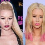 Iggy Azalea before and after plastic surgery (20)