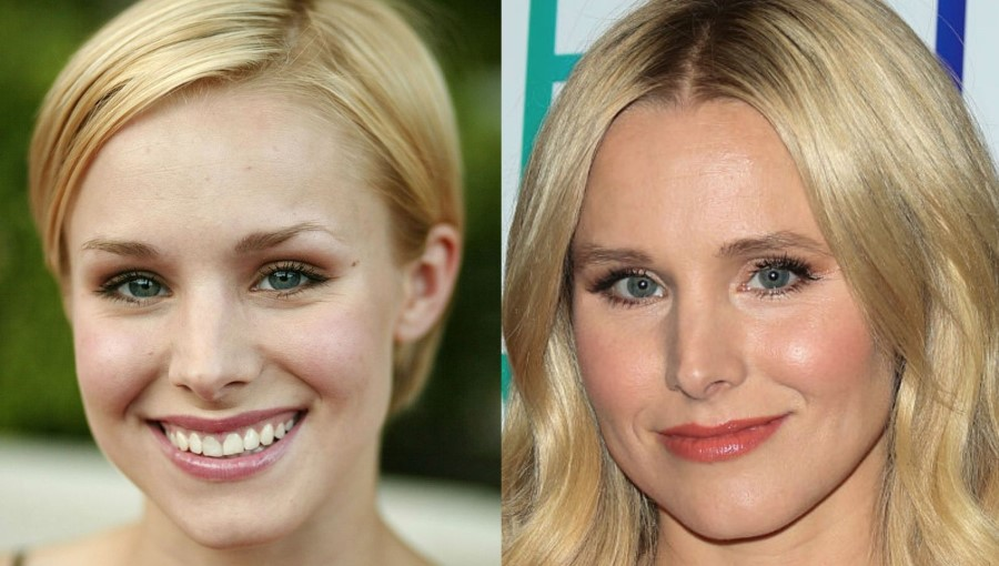 Kristen Bell before and after plastic surgery