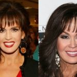 Marie Osmond before and after plastic surgery (15)