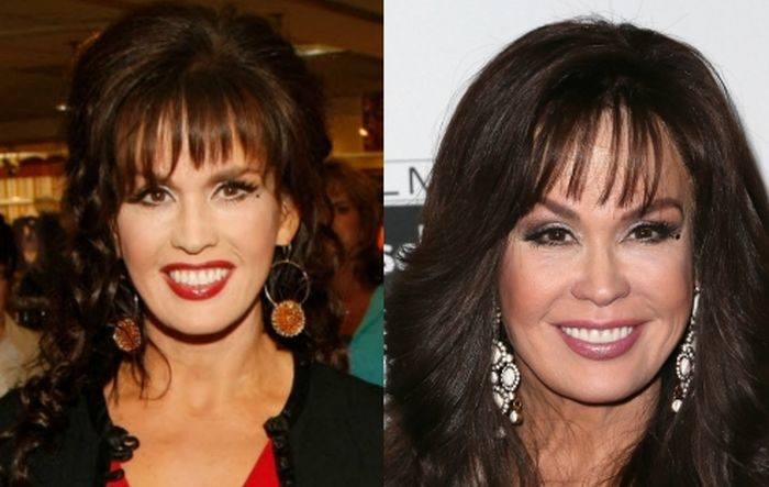 Marie Osmond Before And After Plastic Surgery 15