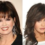 Marie Osmond before and after plastic surgery