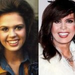 Marie Osmond before and after plastic surgery (8)