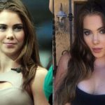 Mckayla Maroney before and after plastic surgery