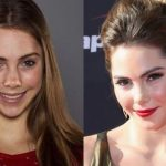 Mckayla Maroney before and after plastic surgery (30)