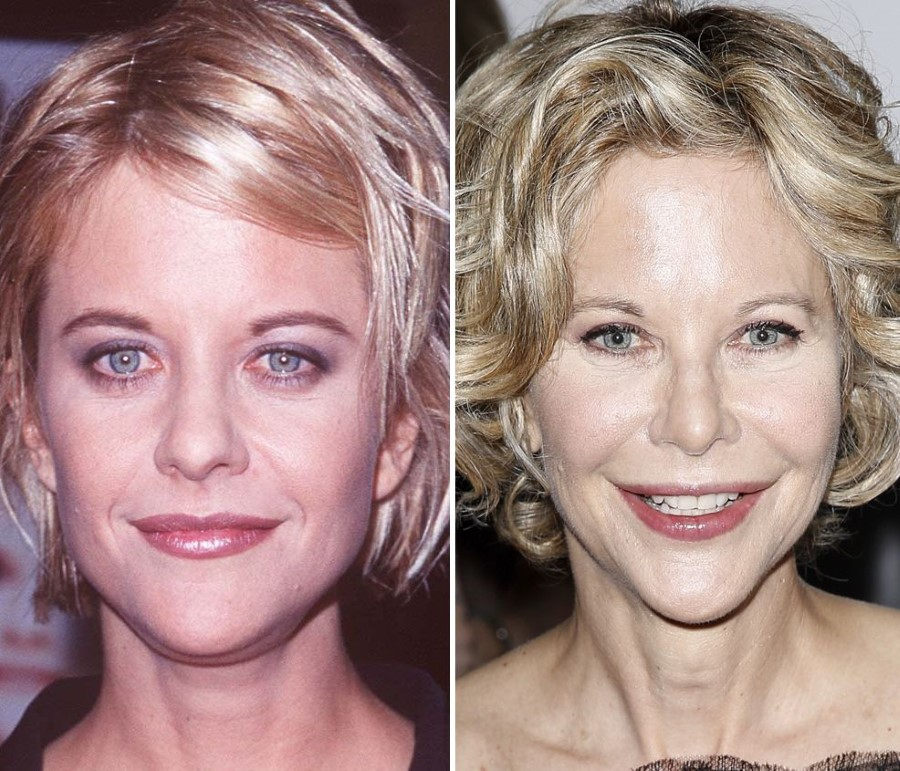 Meg Ryan Before And After Plastic Surgery Celebrity Plastic